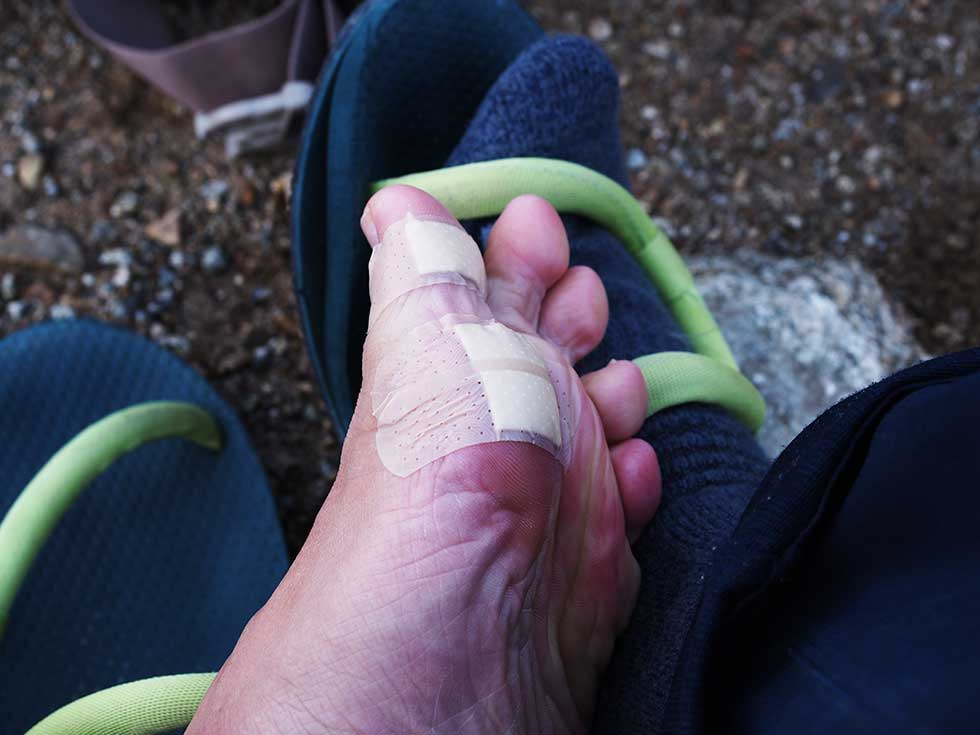 登山の靴擦れ・マメの対策